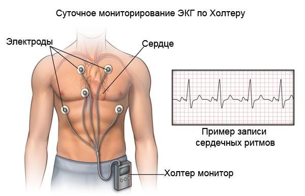 Холтер мониторирование сердца
